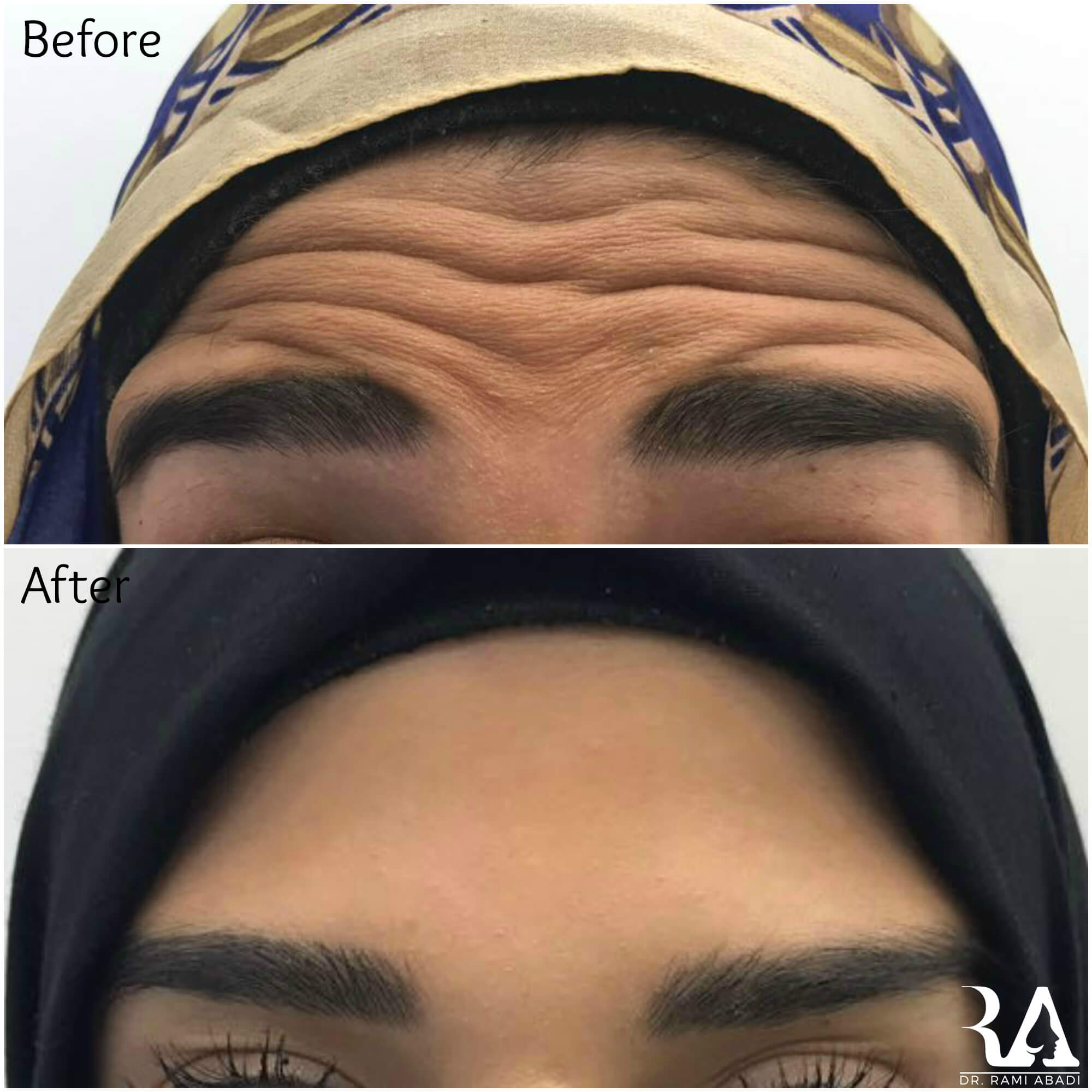 Botox for forehead lines and wrinkles