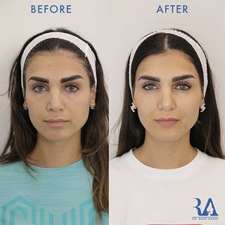 Fillers for Full Face