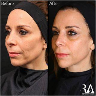 Dr  Rami Abadi - General Dermatology, Cosmetic Dermatology