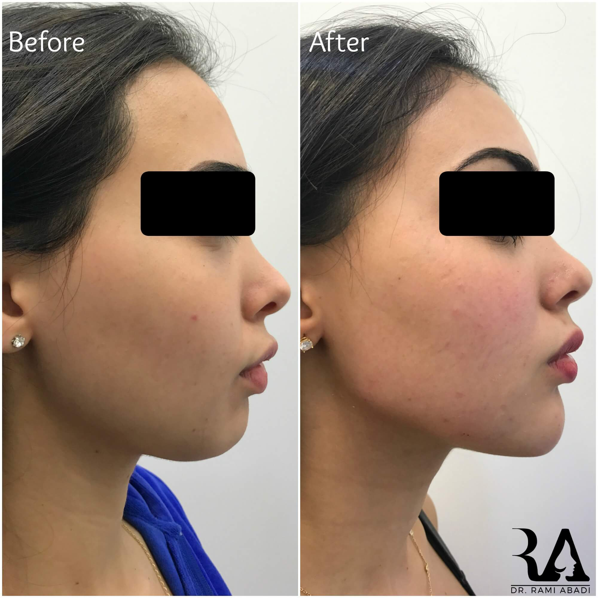 Chin Enhancement and Jawline Definition with Fillers