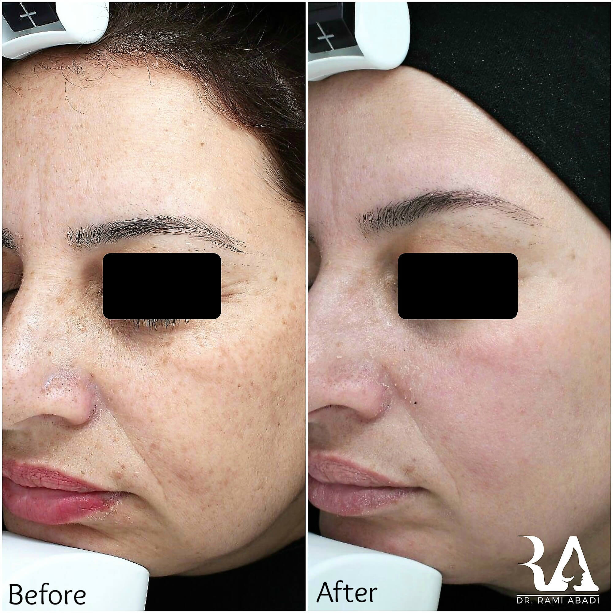 Treatment of freckles, pigmentation and skin texture